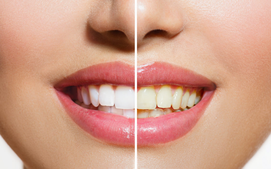 Top Services for a Complete Smile Makeover